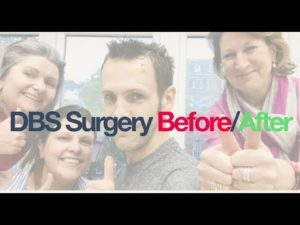 David Sangster - DBS Surgery Before/After